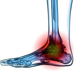 Foot RT
